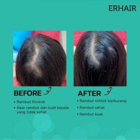 Hairgrow Serum (7x8ml)