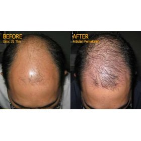 Hair Growth Accelerator (G)